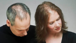 Hair loss treatments men and women